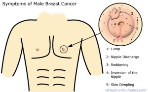 breast_cancer_male