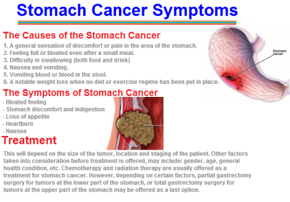 stomach cancer symptoms